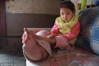 5岁女孩患癌腿粗如象脚