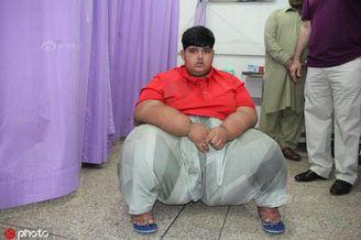 巴基斯坦10岁小孩体重200公斤