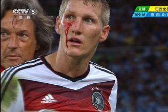 猴拳?血泪!德国硬汉脸被抓挠 鲜血直飙(图慎入)