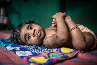 印男婴因遗传成狼孩